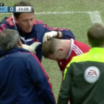 Wayne Rooney got his head stapled during the Manchester derby
