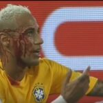 Neymar was covered in his own blood during Brazil-Bolivia